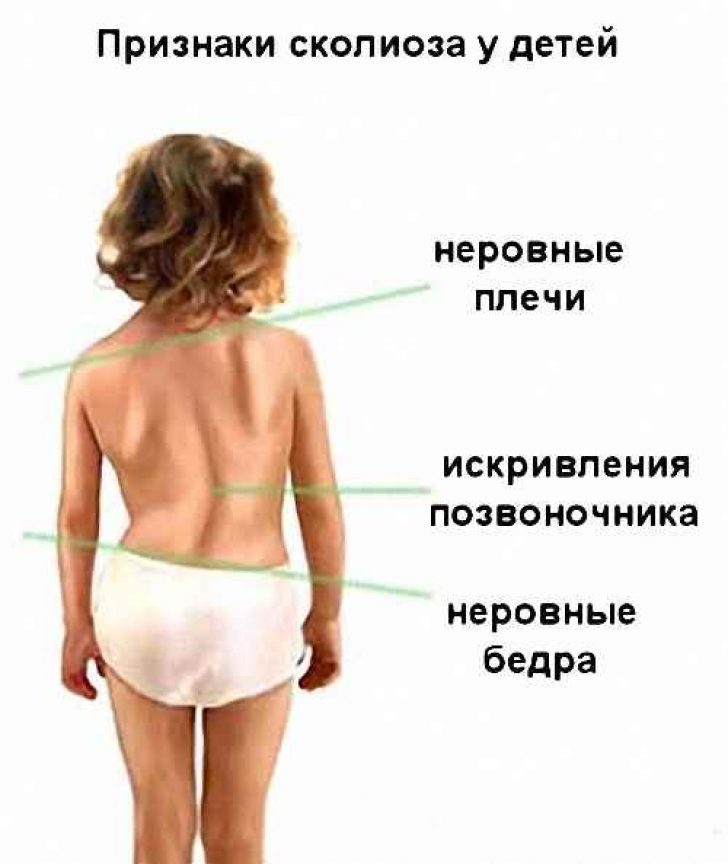 Сколиоз у детей - симптомы, лечение и причины болезни