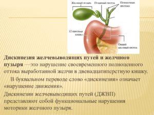 Дискинезия желчевыводящих путей у детей, ребенка: джвп симптомы, лечение, профилактика