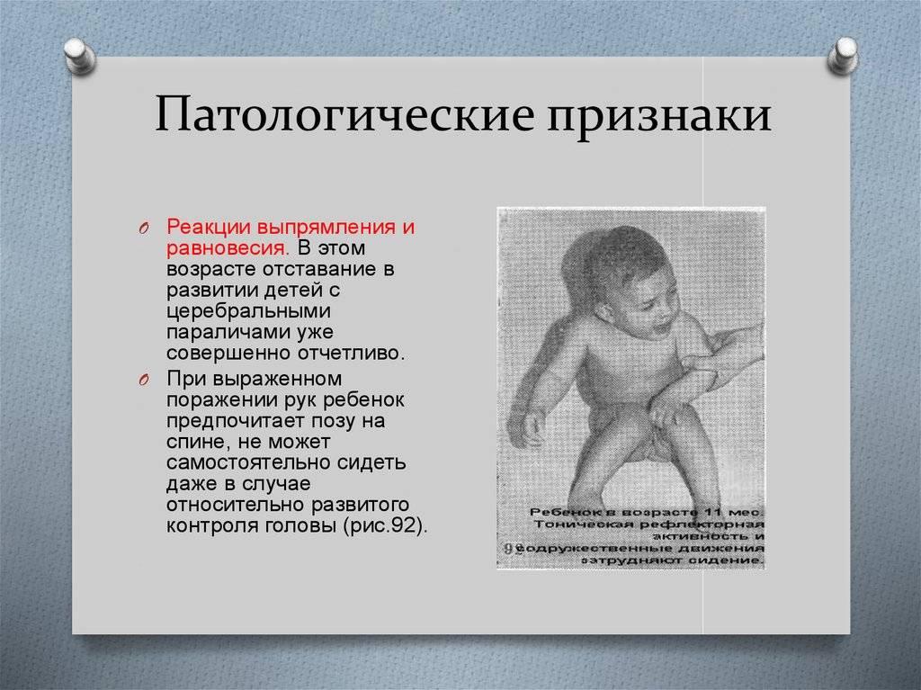 Эпилепсия у детей: причины, классификация и варианты лечения