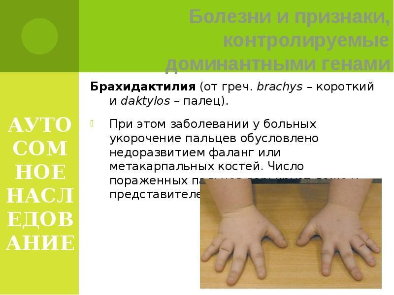 3 причины и симптомы брахидактилии большого пальца - что это такое   spravki1.ru