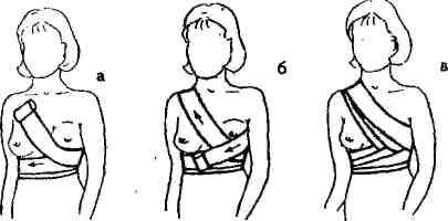 Как перетягивать грудное молоко правильно: инструкция, фото перевязки | zdavnews.ru