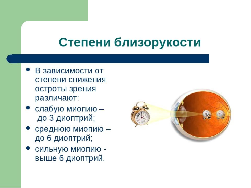 Гиперметропия слабой степени: что это такое, код по мкб 10, дальнозоркость обоих глаз у детей, h52 0, скрытая 1 ст