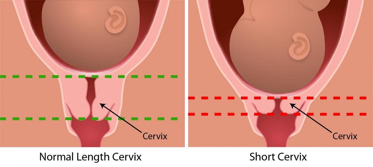Короткая шейка матки при беременности: что делать, если она укорочена, причины укорачивания в 20-30 недель