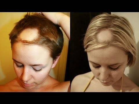 Выпадение волос после родов: причины и лечение