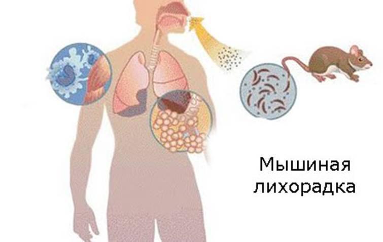 Как проявляется мышиная лихорадка. мышиная лихорадки у детей: симптомы, стадии, осложнения. осложнения мышиной лихорадки