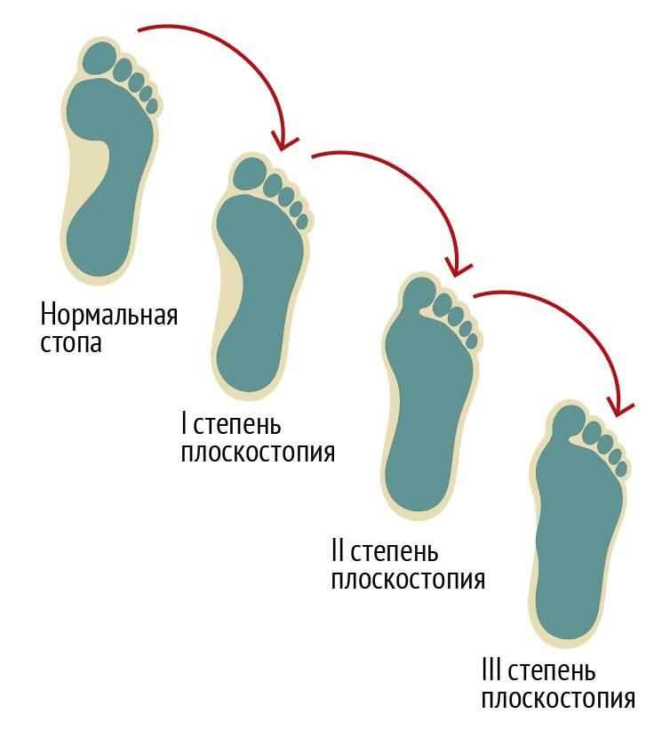 Методы лечения плоскостопия у детей в домашних условиях