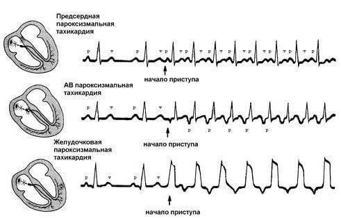 Пароксизмальная тахикардия у детей | компетентно о здоровье на ilive