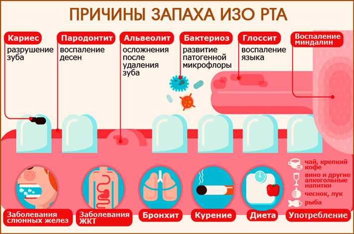 Запах ацетона изо рта у ребёнка: причины и лечение