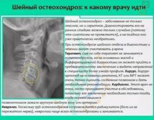 Остеохондроз позвоночника: виды, степени, симптомы и лечение остеохондроза