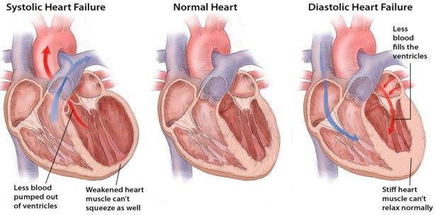 Ложная хорда в сердце у ребенка — сердце