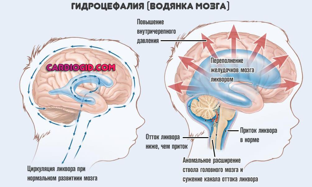 Гидроцефалия головного мозга у новорожденных (20 фото): водянка мозга - гидроэнцефалопатия у грудничка - симптомы, лечение и последствия