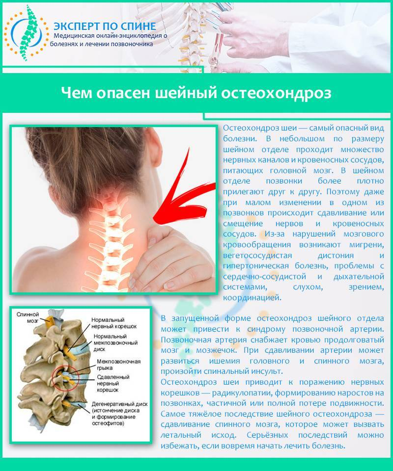 Остеохондроз позвоночника: причины и лечение