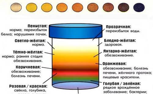 Темный цвет мочи у ребенка: почему коричневого или темно-желтого цвета по утрам