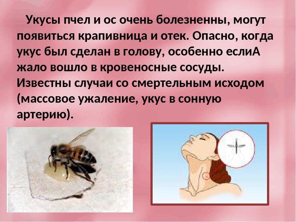 Что делать, если ребенка укусила пчела