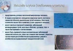 Клебсиелла у грудничка: симптомы наличия в кишечнике у ребенка, новорожденных, лечение бактериофагом бактерии клебсиеллы окситока