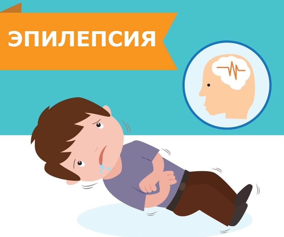 Эпилепсия у грудничков: признаки, симптомы, как проявляется у детей до года и причины