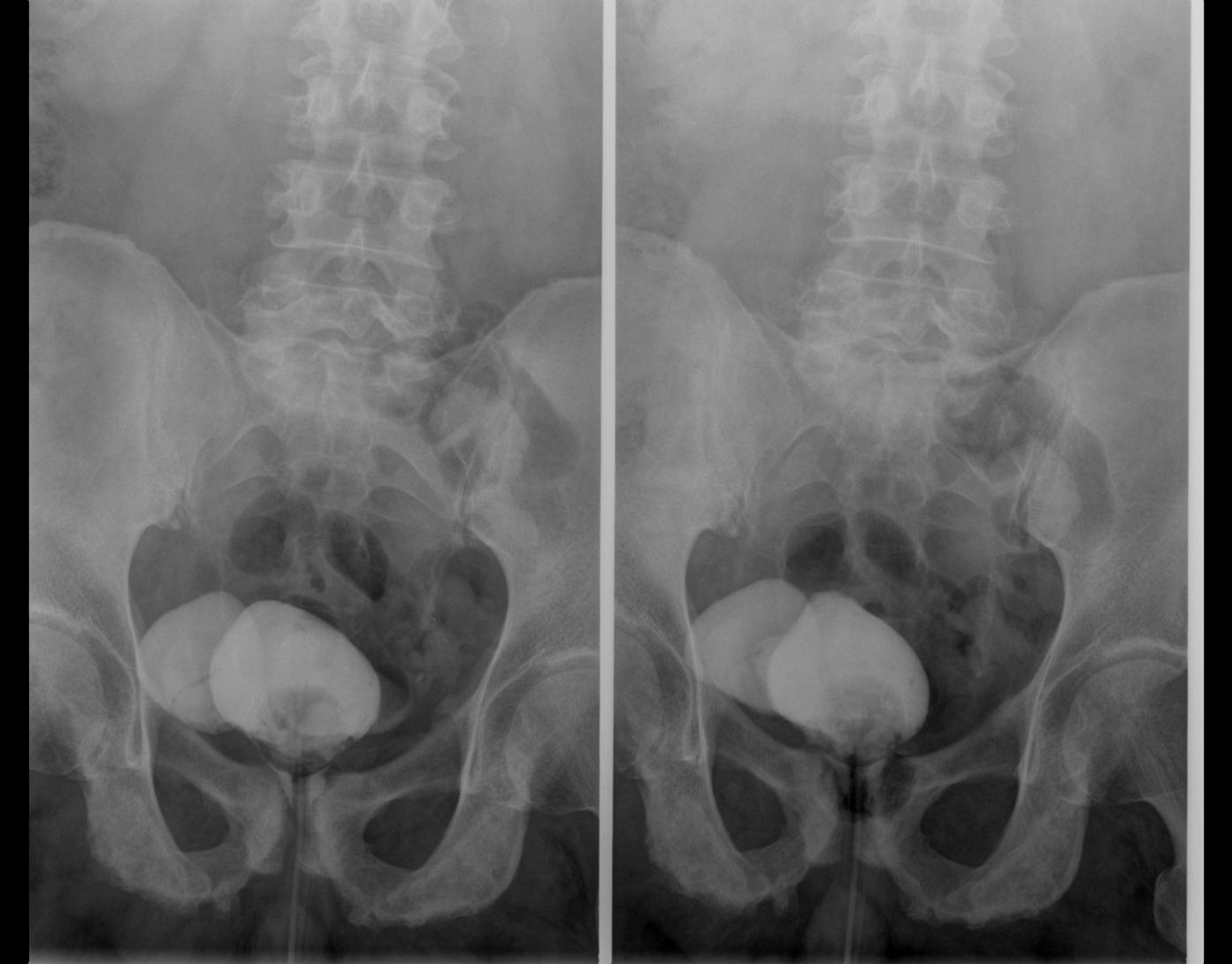 Как проводится процедура цистографии мочевого пузыря и почек