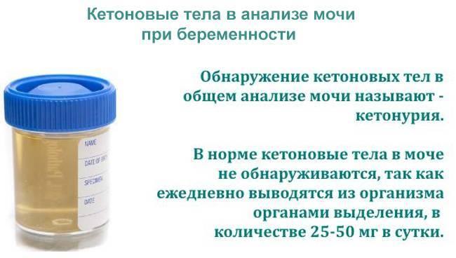 Ацетон в моче у ребенка: симптомы, признаки, причины, показатель нормы, лечение высокого уровня ацетона и следов ацетона в моче по комаровскому. диета при ацетоне у детей | qulady