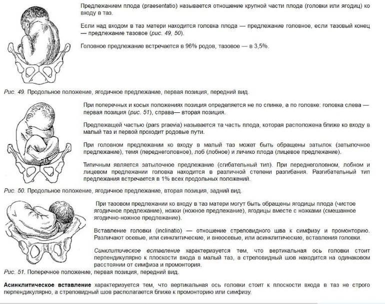 Упражнения для беременных, чтобы ребенок перевернулся головкой вниз: какая гимнастика желательна при тазовом предлежании плода и есть ли ограничения для зарядки?