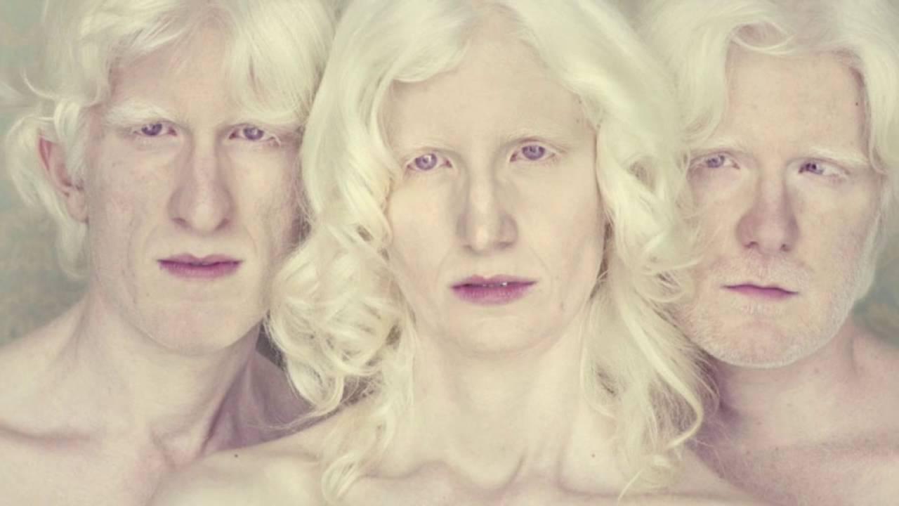 Люди-альбиносы – почему рождаются и как живут дети с недостатком меланина?