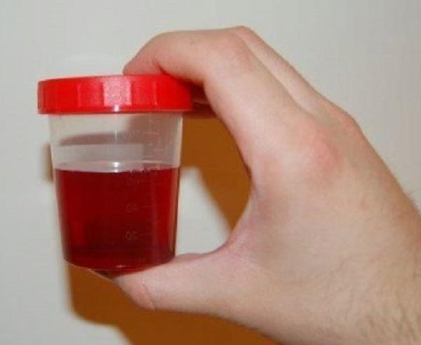 Причины появления следов и сгустков крови в моче у новорожденного и ребенка старше года. опасно ли появление крови в моче у ребенка новорожденная девочка писает с кровью