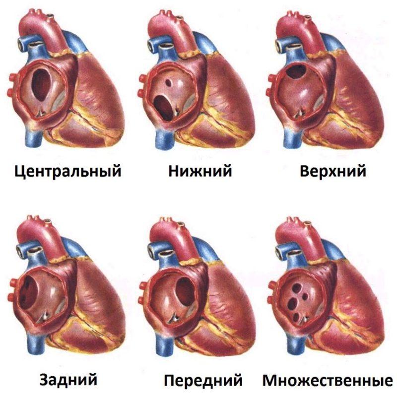 Дефект межсердечной перегородки у новорожденного — заболевания сердца