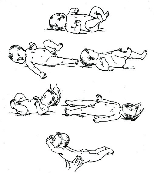 Гипотонус у грудничков
