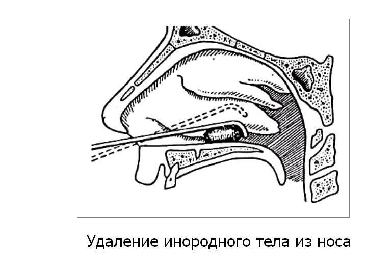 Что делать, если с нос попало инородное тело: алгоритм действий, рекомендации родителям - лекарьтут