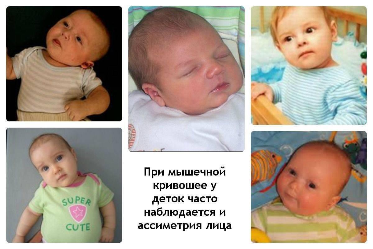 Кривошея у новорожденных— признаки, фото и лечение