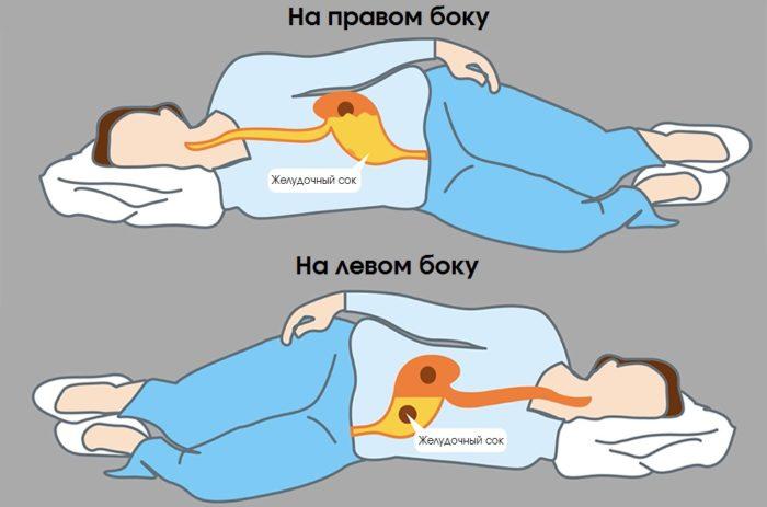 Можно ли лежать на спине при беременности? ищите ответ здесь!