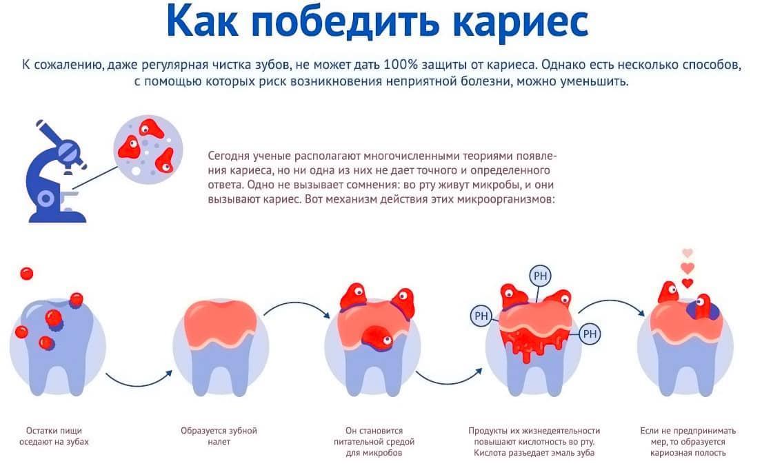 Кариес у детей – причины, лечение кариеса молочных зубов, профилактика