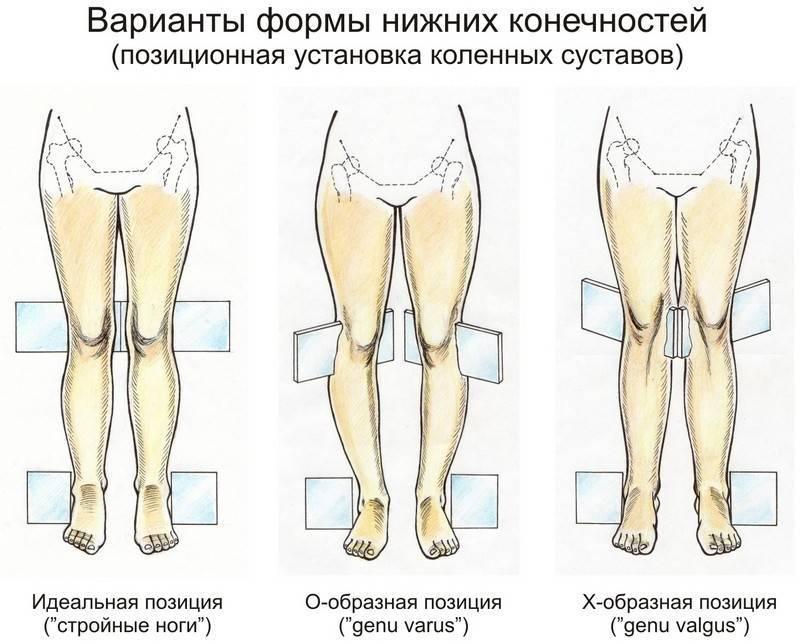 Упражнения от врача‐ортопеда при вальгусной деформации коленных суставов у детей - все о суставах