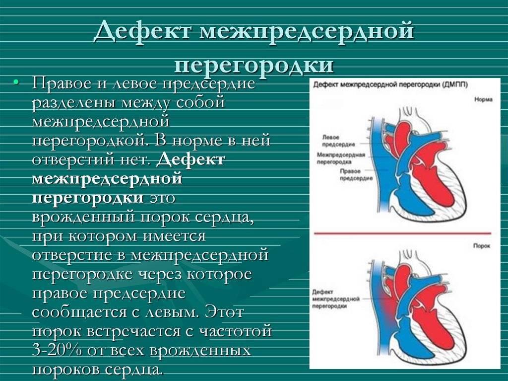 Дмпп сердца у детей и взрослых: причины, симптомы, лечение