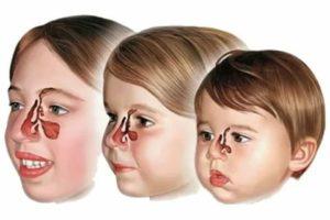 Гайморит у детей – как распознать и начать лечение?