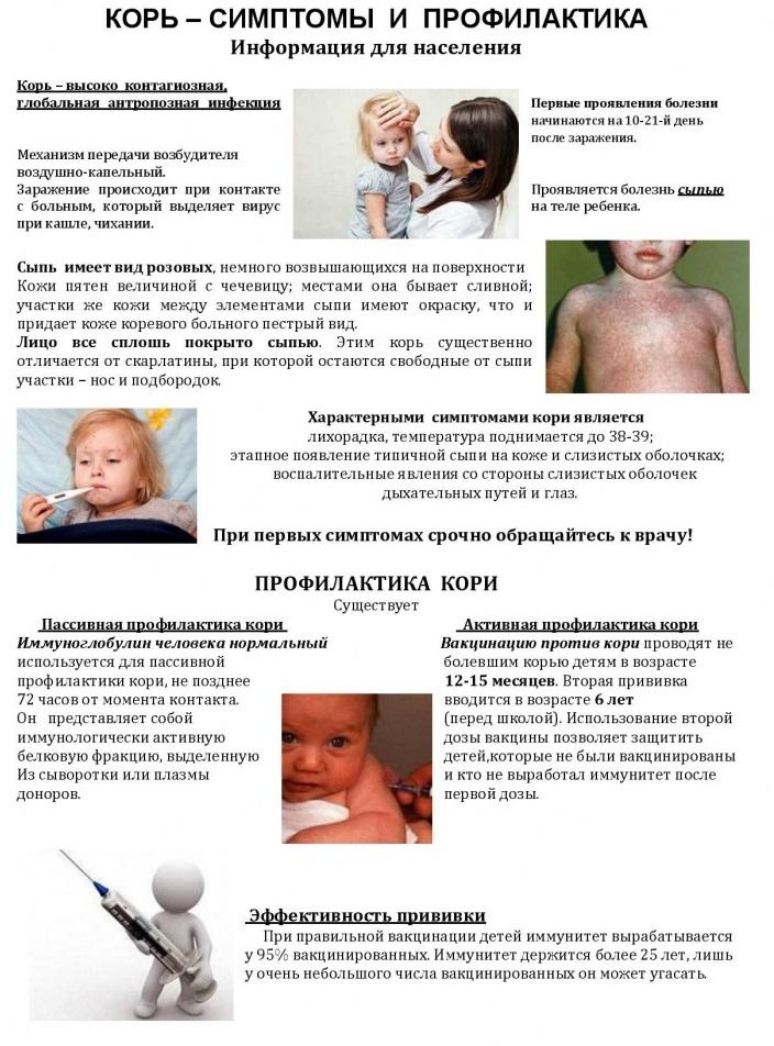 Корь симптомы у взрослых - когда делается прививка и сколько раз, признаки, лечение, вакцинация, фото сыпи, профилактика