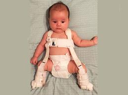 Что такое дисплазия ног у детей: от причин появления до методов лечения и профилактики