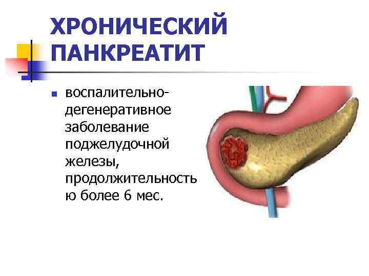 Панкреатит у детей - признаки, диагностика, медикаментозная терапия и диета