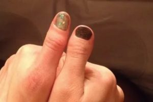 Брахидактилия большого пальца — что это такое, причины развития