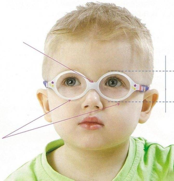 Как проявляется и лечится смешанный астигматизм у детей?