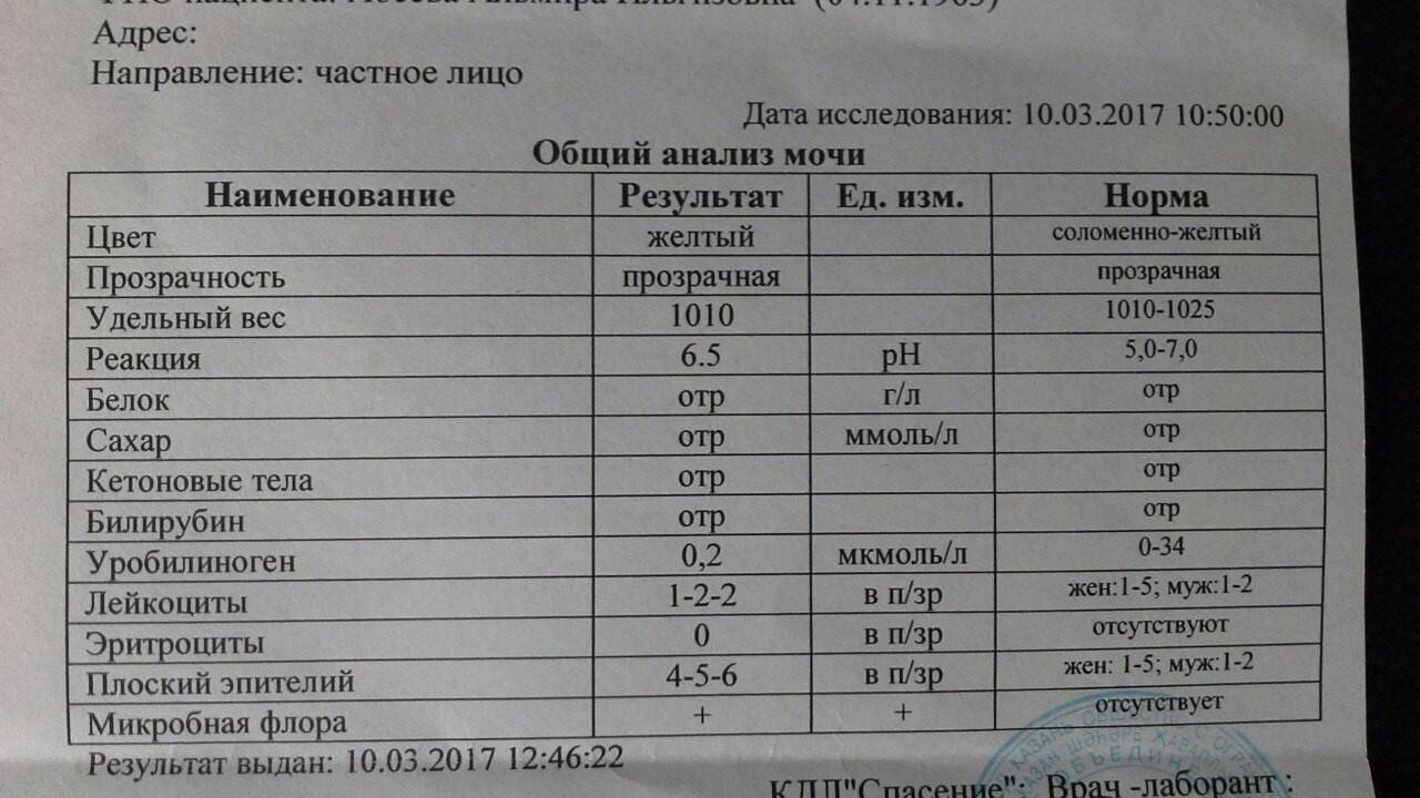 Удельный вес мочи: нормальные показатели и возможные нарушения - kardiobit.ru