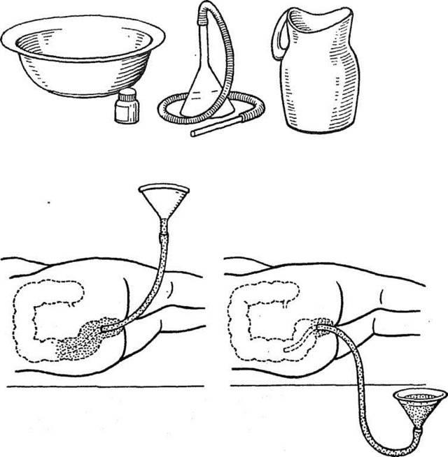 Промывание желудка. техника и алгоритм промывания желудка при отравлении.  промывание желудка у детей. показания и противопоказания.  :: polismed.com