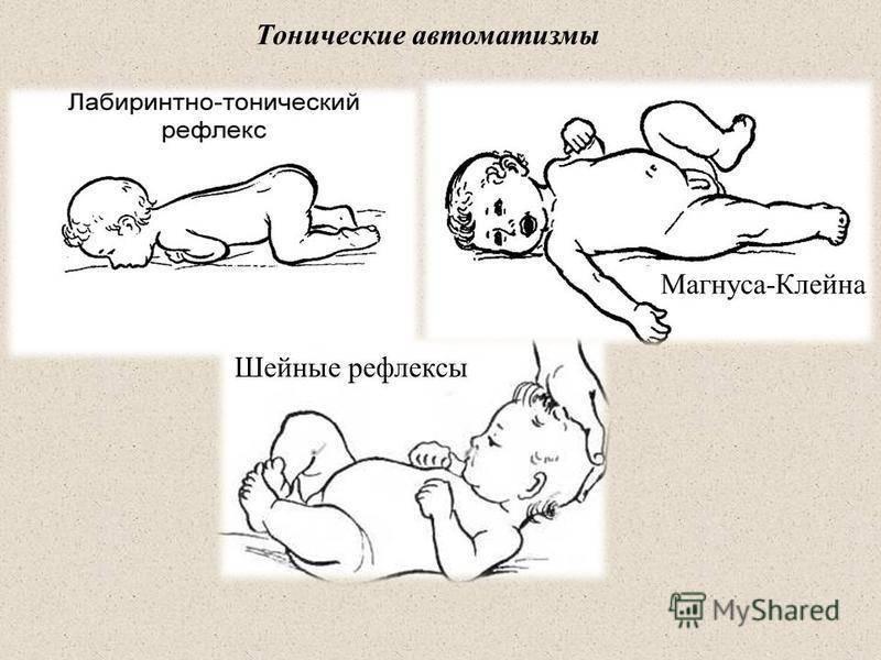 Рефлексы новорожденного. ваш малыш от рождения до двух лет