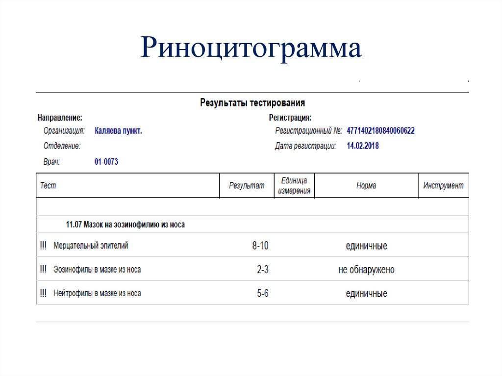 Расшифровка и норма мазка из носа на эозинофилы