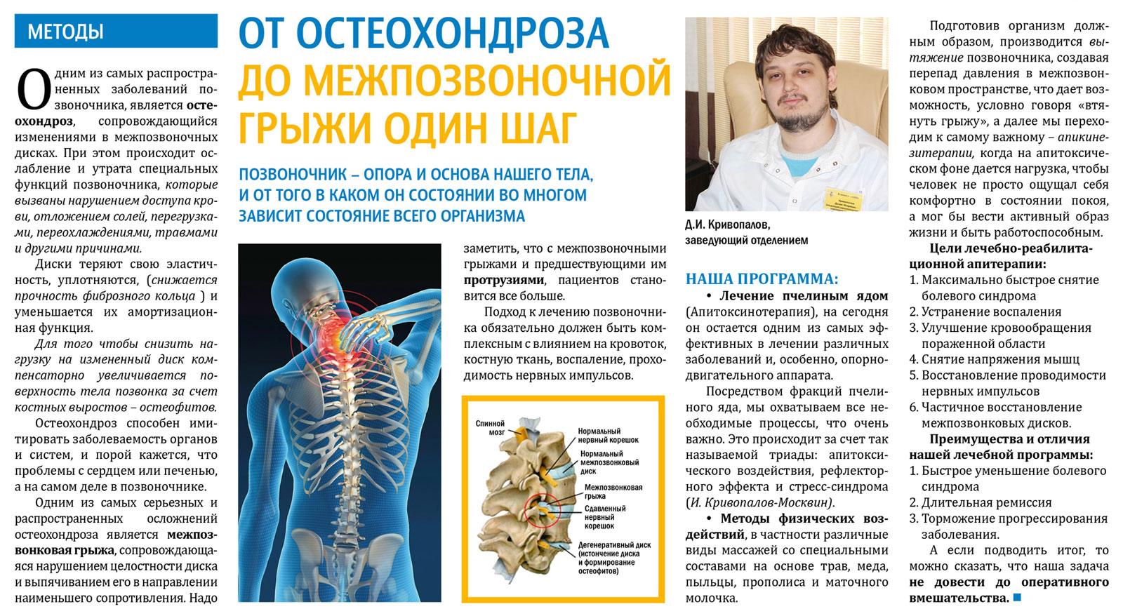 Остеохондроз грудного отдела позвоночника: симптомы и лечение, причины, стадии заболевания