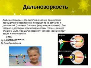 Гиперметропический (дальнозоркий) астигматизм у детей: излечим ли он и как помочь ребенку?