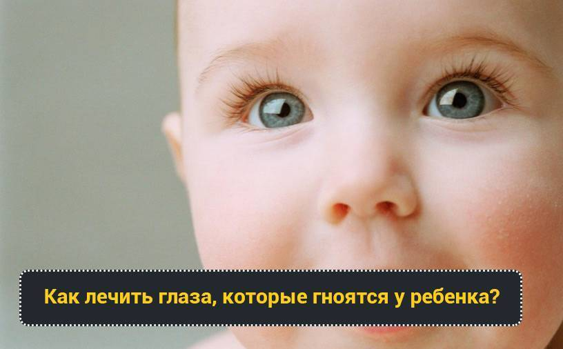Почему у ребенка гноятся глаза и насморк pulmono.ru почему у ребенка гноятся глаза и насморк