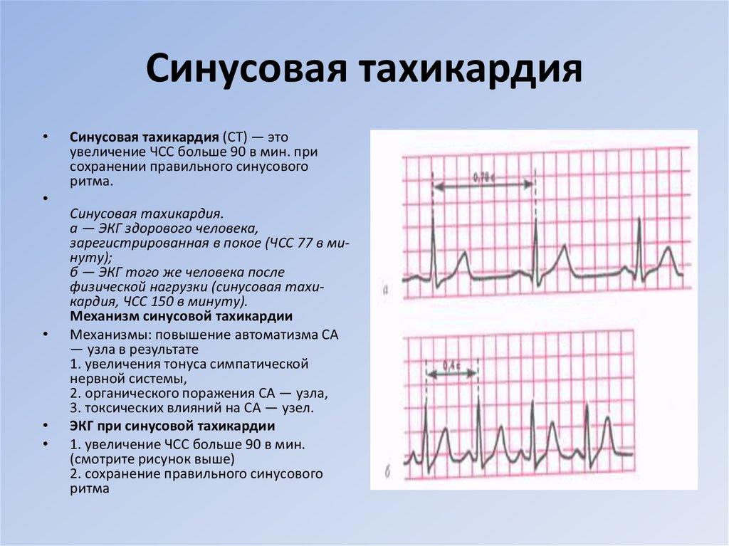 Синусовая тахикардия у новорожденных лечение