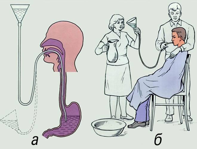 Промывание желудка ребенку: алгоритм процедуры у детей, в том числе новорожденных, как промыть в домашних условиях