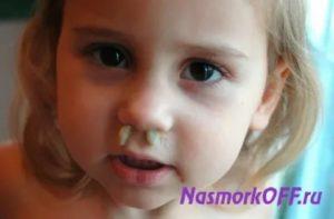 У ребенка зеленые сопли и гноятся глаза: лечение простуды с насморком, кашлем и конъюнктивитом