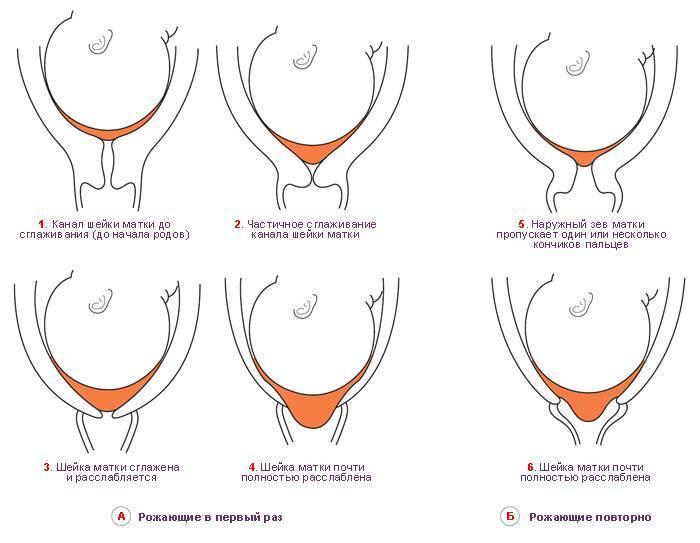 Общие симптомы своевременного раскрытия шейки матки при родах | симптомы и лечение урогенитальных заболеваний – noprost.ru